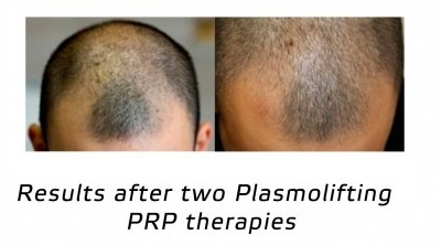 PRP therapy - Hair loss treatment